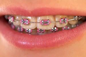 Metal Braces Closeup